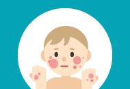 Course Image Pediatric Atopic Dermatitis Online Education
